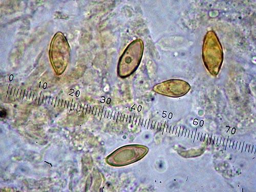 Boletus permagnificus spores