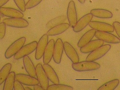 Boletus rhodoxanthus