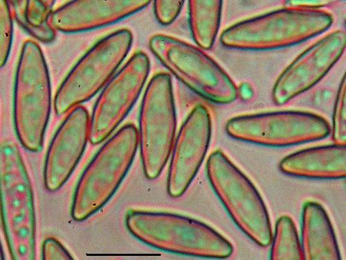 Leccinum crocipodium
