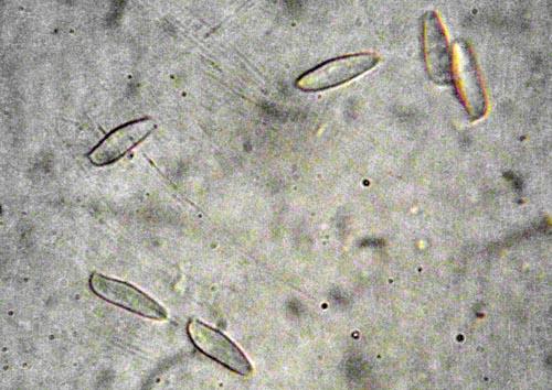 Tylopilus felleus
