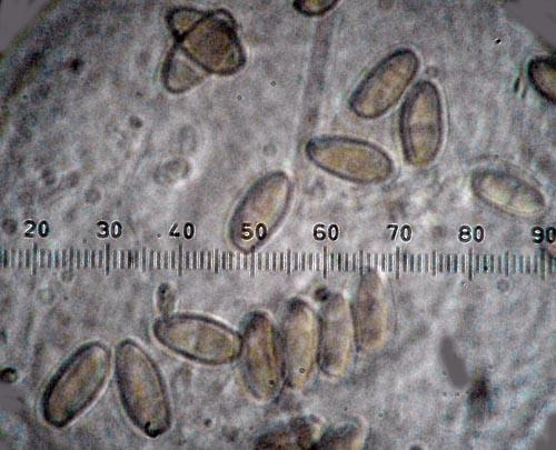 Xerocomus persicolor spores