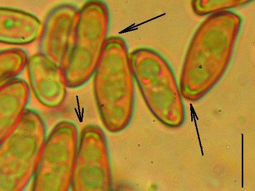 Xerocomus porosporus