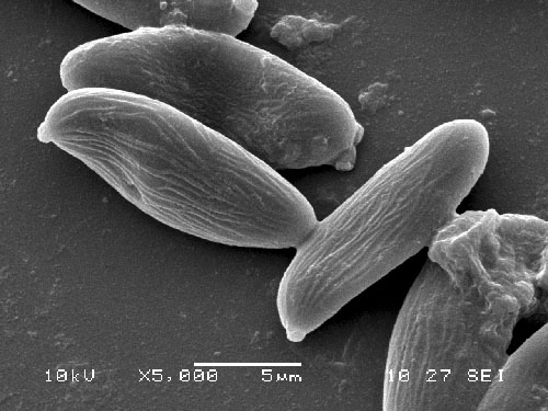 Xerocomus pruinatus