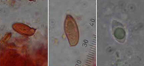 Boletus xanthocyaneus